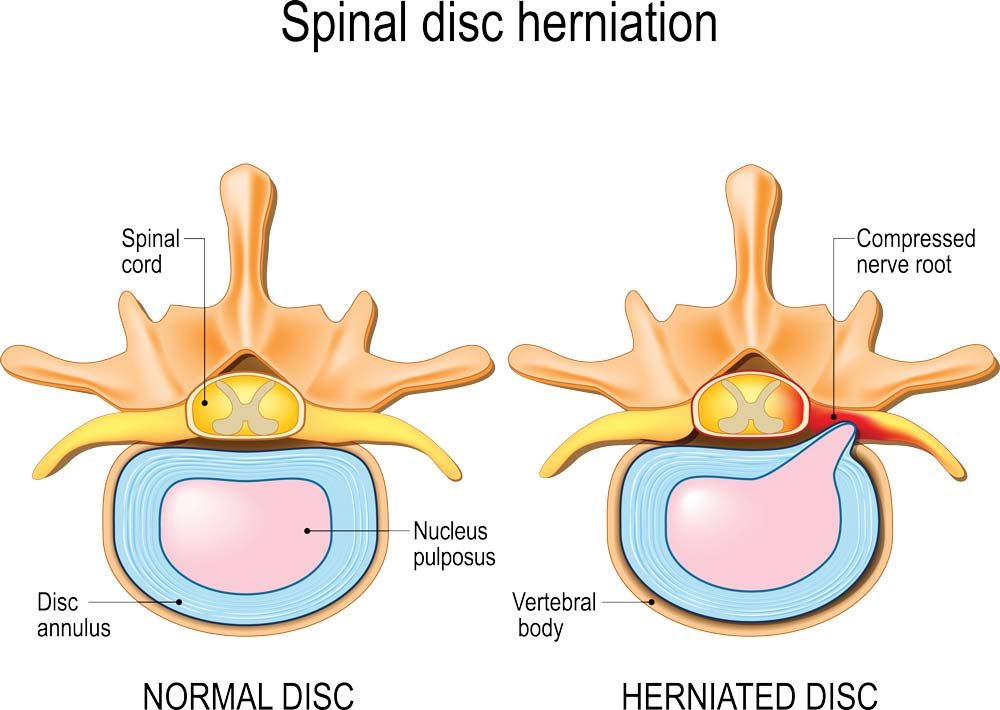 disc herniation treatment